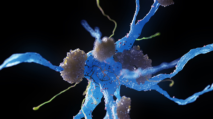 A nerve cell affected by Alzheimer's disease