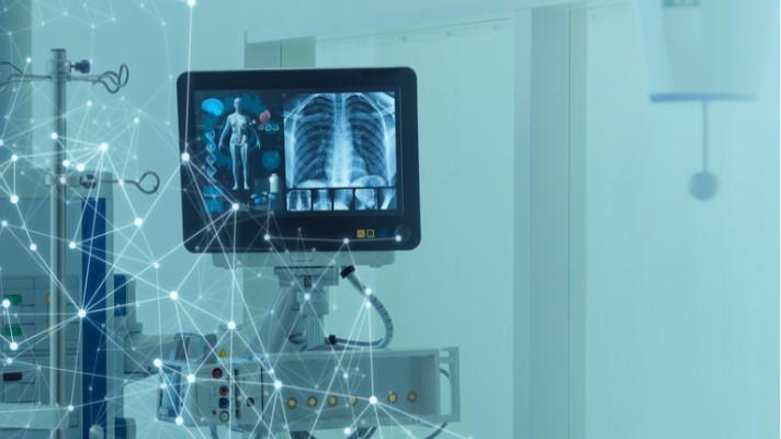 Artificial intelligence, Thirona, Cystic Fibrosis