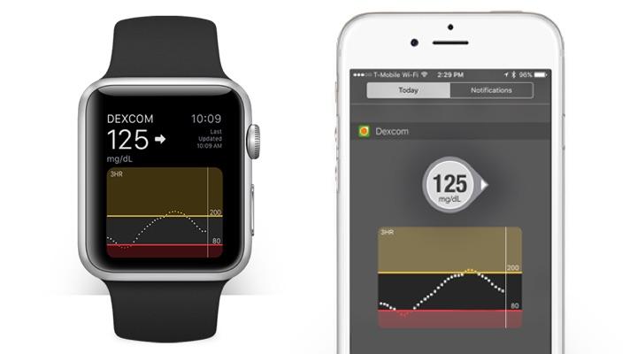 Dexcom's next generation Apple Watch CGM app needs one less