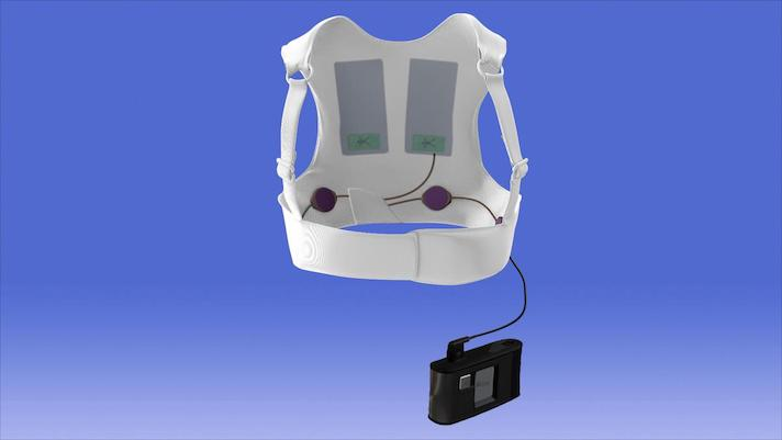FDA: 2 deaths linked to malfunction of wearable defibrillator
