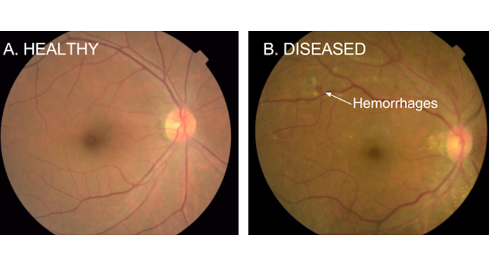 8ecd7b6b754 Google researchers use deep learning to detect diabetic retinopathy with  upwards of 90 percent accuracy