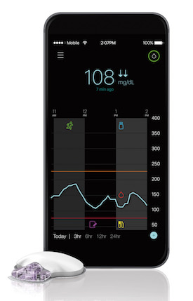 Medtronic Gets Ce Mark For Smartphone Connected Cgm