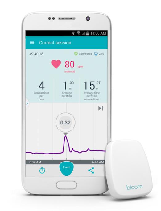 Bloomlife pregnancy gadget technology gadget