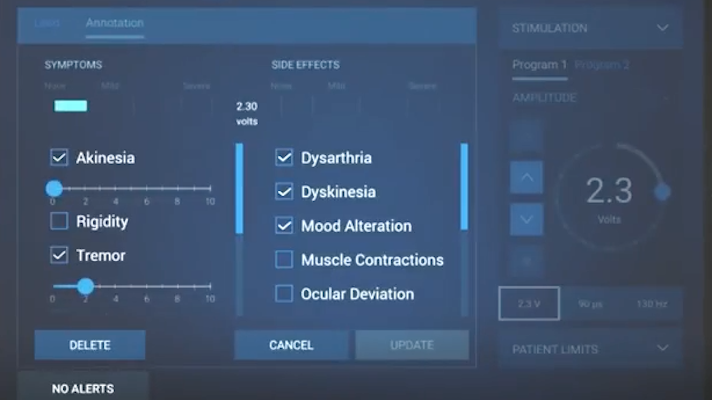Medtronic S Deep Brain Stimulation Programmer And App Get The Fda Nod Mobihealthnews