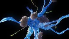 Nerve cells affected by Alzheimer's disease