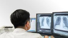 A doctor reading chest x-ray scans.