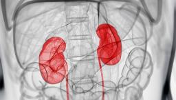 x-ray view of kidneys