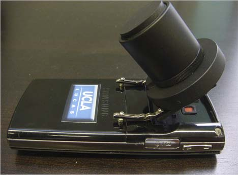 Microskia mobile phone microscope