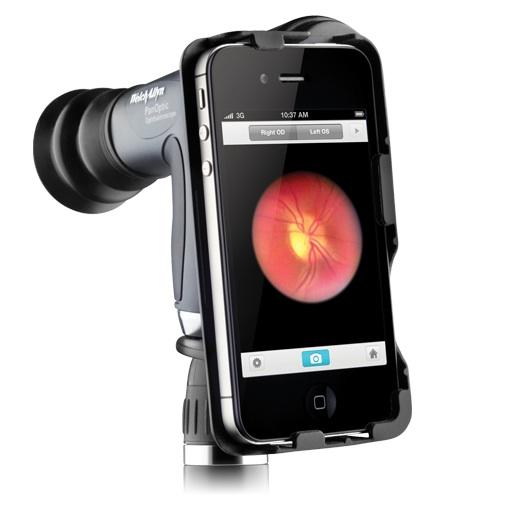 Otoscope Camera Iphone