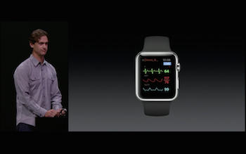 AirStrip Apple Watch