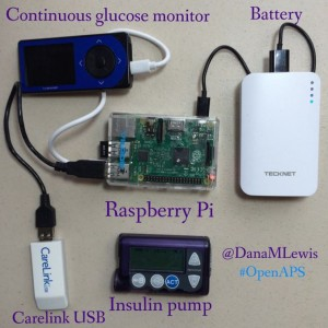 What-an-OpenAPS-looks-like-by-@DanaMLewis